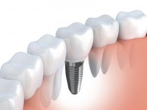 hammasimplantti kuin oma hammas